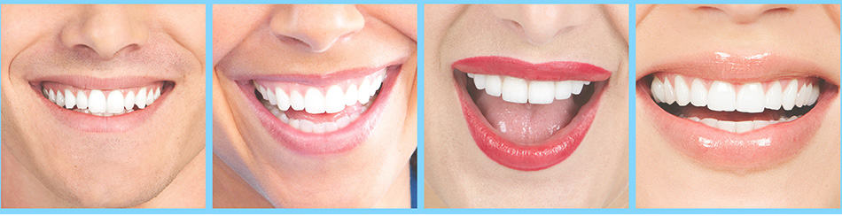 smiles with veneers