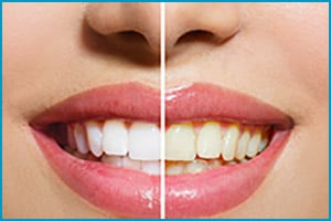 white teeth after whitening